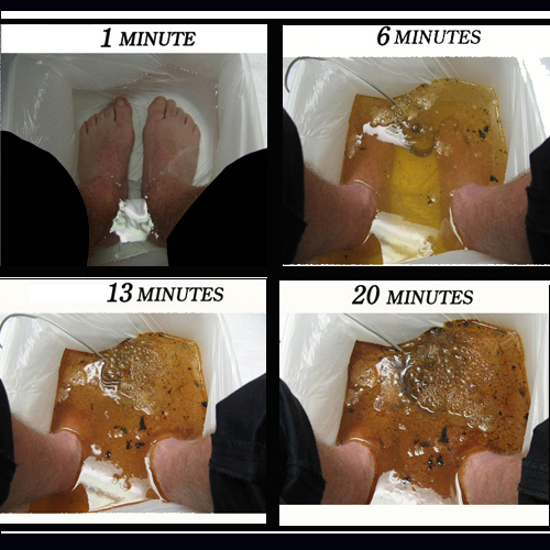 what is a detox foot bath and How to work?